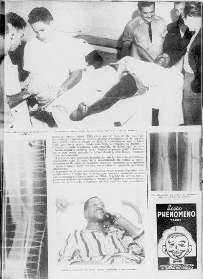 """A impressionante imagem das radiografias de Barbosa mostrava a perna quebrada em dois ossos. Grave lesão o deixou parado quase dois anos  - Reprodução """"Cruzeiro"""""""